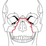 Fracturas Traumatismos Faciales y Malformaciones en Tijuana Maxilofacial