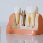Implantes dentales en tijuana