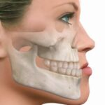 prognatismo-cirugía- ortognática-tijuana-maxilofacial