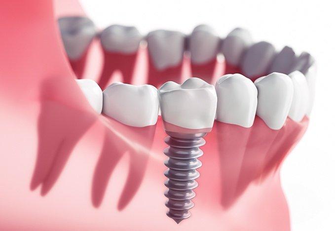 Implantes dentales en tijuana mexico